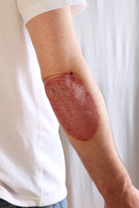Person suffering from psoriasis